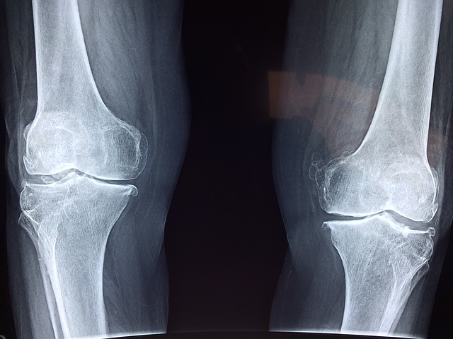 Orthopedic Malpractice Atlanta