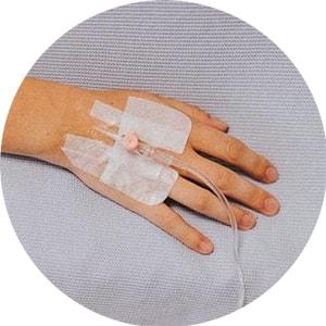 IV Infiltration